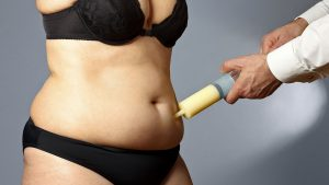 When to seek help after liposuction