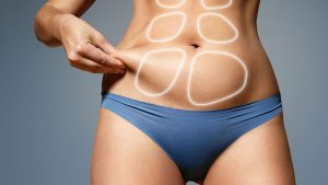 How extensive is the scarring after the tummy tuck?